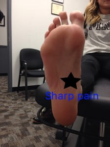 Typical Pain location for Plantar Fasciitis