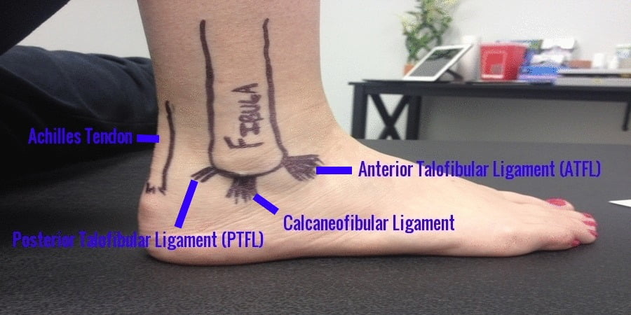 Craigslist Norman Ok >> Best Home Treatment For A Sprained Ankle - Homemade Ftempo